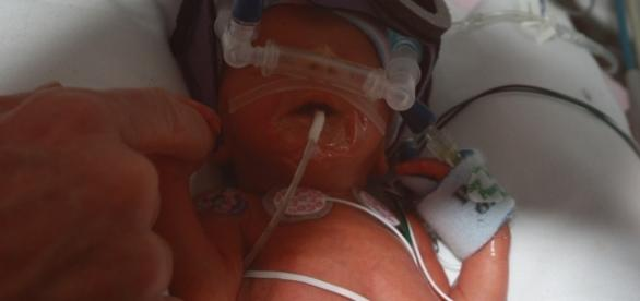 The challenges for premature babies. Image source:myleftbehind.files.wordpress.com