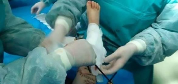 Depois da cirurgia, menino ainda está nos cuidados intensivos