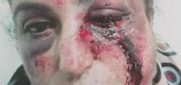 CHOC: Fatna, tabassée par son mari après un mariage refusé