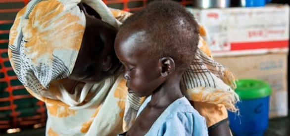 População vem sofrendo com a fome e desnutrição no Iêmen, Sudão do Sul, Somália e Nigéria