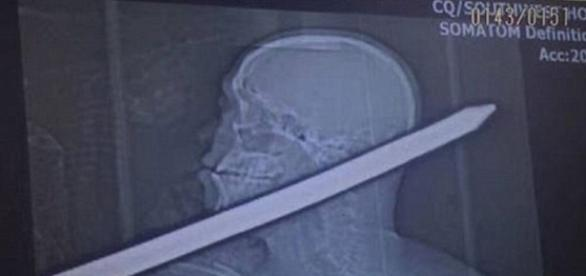 Imagem do raio X mostra que a barra de ferro atravessou a cabeça do operário