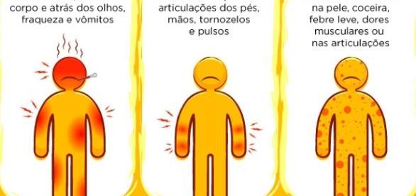 Diferentes sintomas da Dengue, Chikungunya e Zika
