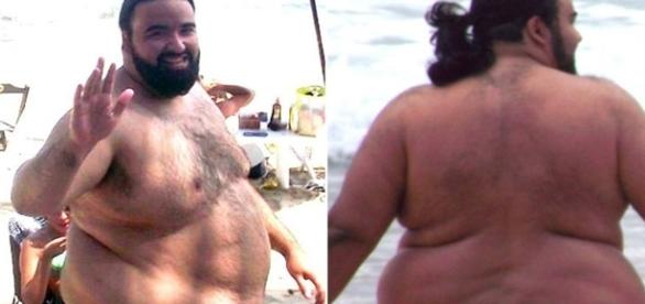 Incrível! Ele perdeu 103 kg apenas com reeducação alimentar e atividades físicas!