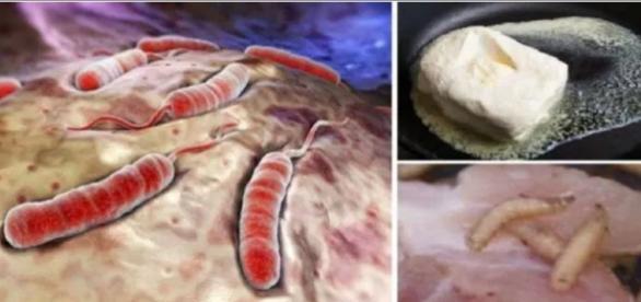 Ilustração e fotos de células anormais