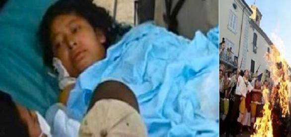 Mulher é queimada na Nicarágua em sessão de exorcismo