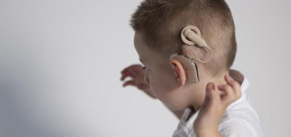 Tricky cochlear implantation | Page 2 - wordpress.com