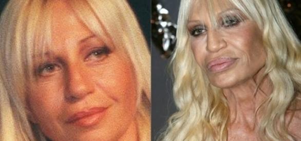 Donatella Versace está na lista de mulheres que arruinaram seu rosto.