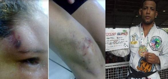 Jovem é agredida em um bar no centro do Rio por um lutador de jiu-jitsu