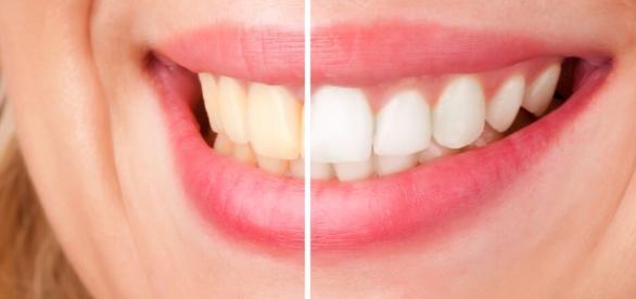 Clareie seus dentes em casa, sem precisar de tratamentos caros