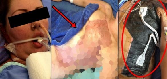 Mulher leva bolada e fica em condições terríveis - Google