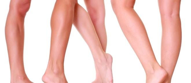 Get legs without varicose veins