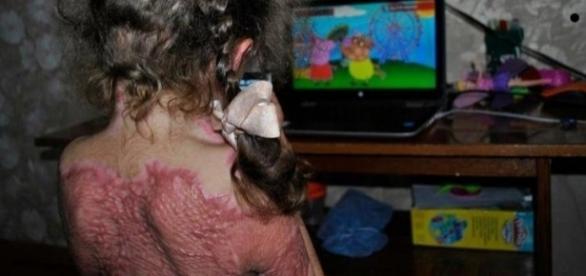 Jogo online induz crianças a sofrerem queimaduras.