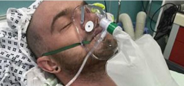 Josh Rose foi atacado por uma cobra