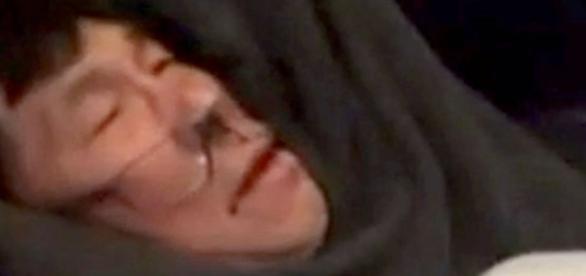 Doctor dragged off United flight needs reconstructive surgery ... - go.com