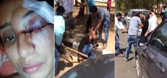 Nas imagens é possível ver a mulher com o rosto todo machucado e o momento em que o homem é agredido.