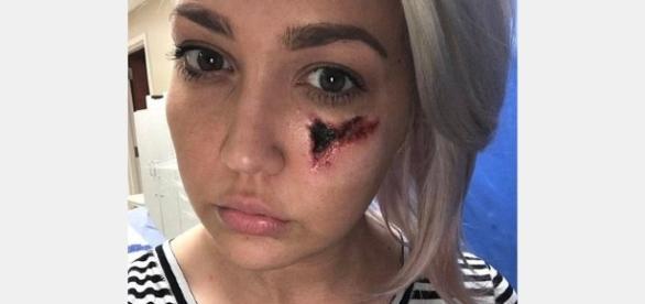 O rosto de uma cantora ficou desfigurado depois do ataque de um aracnídeo.