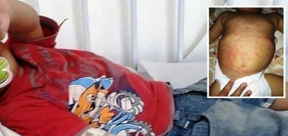 Na imagema criança que apresentou uma reação alérgica.