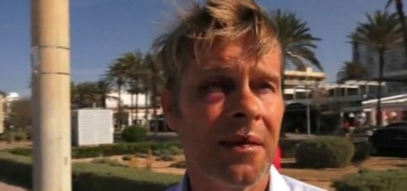 Hinnerk Baumgarten (49) ist von Wunden gezeichnet / Foto: Screenshot spot on news