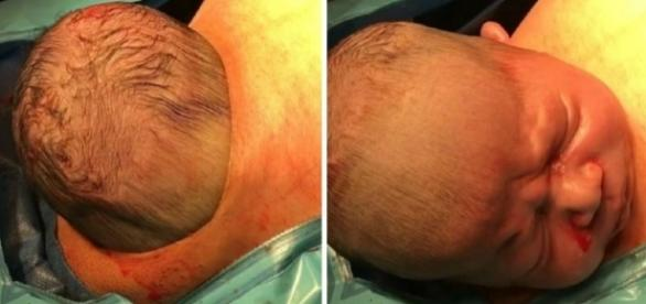 Bebê nasceu durante um parto por cesariana