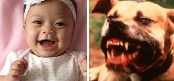 Bebê é vítima de pitbull - Imagem/Google