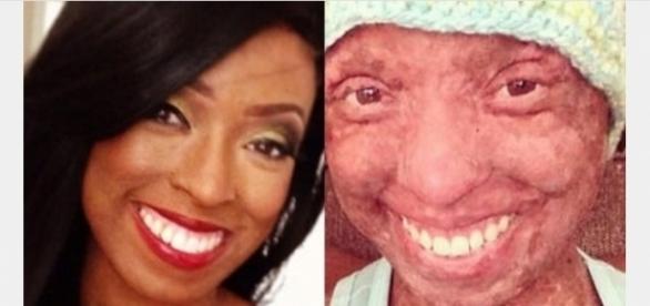 Foto mostra como era a estudante antes e depois de usar o medicamento