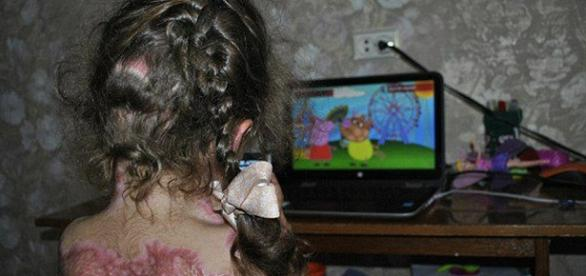 Menina sofre queimaduras após seguir instruções de jogo online