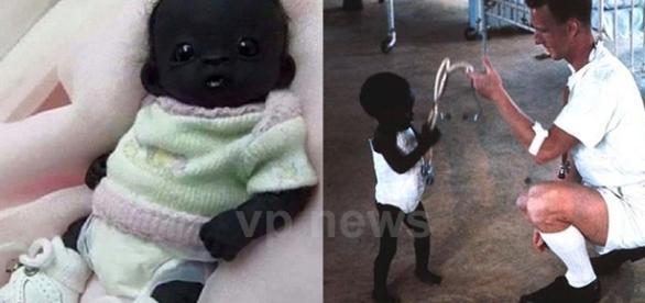 """Supostas fotos de como era e como estaria o """"bebê mais negro do mundo"""" (Foto: Montagem)"""