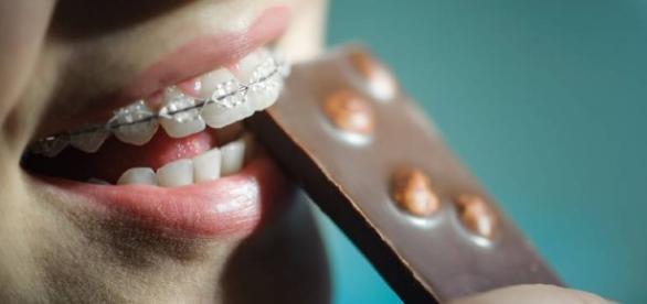 Cinco situações que só quem usa aparelho dentário vai entender