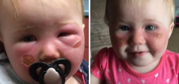 Bebê Kyla teve o rostinho todo queimado pelo produto ( Foto: Reprodução)