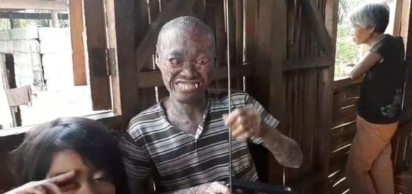 Xingado de monstro pelos habitantes locais, homem vive recluso (Daily Mail via Viral Press)