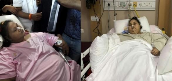 Egípcia que perdeu 300 kg após cirurgia continuará tratamento em Abu Dhabi