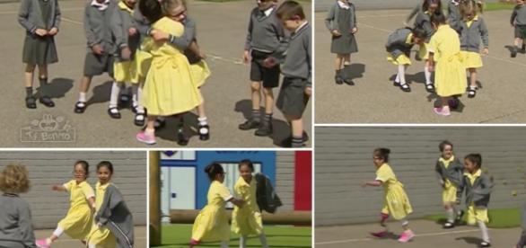 Menina mostra prótese de perna para amigos e reação emociona