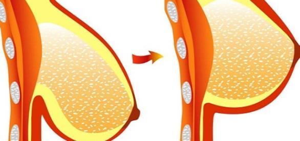 Alguns tratamentos podem ser considerados verdadeiros remédios para a flacidez dos seios