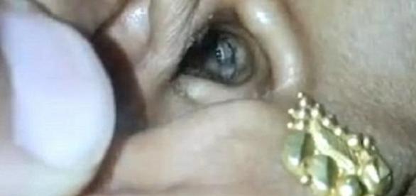 Médicos encontraram uma aranha dentro do ouvido de uma paciente (Foto/Google)