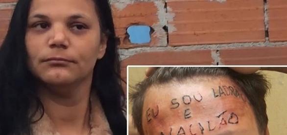 Mãe de adolescente tatuado pede ajuda para tratamentos e remoção da tatuagem ( Foto: Reprodução)