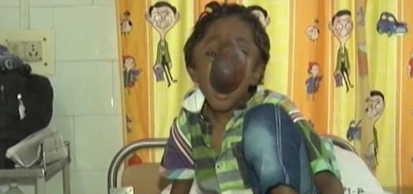 O garoto está internado a espera de uma cirurgia. (Foto/Google)