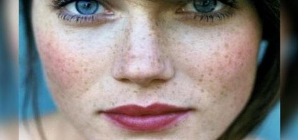 Sardas: imperfeições femininas que os homens amam