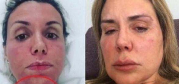 Renata Banhara revela que vive na cama e com muita dor