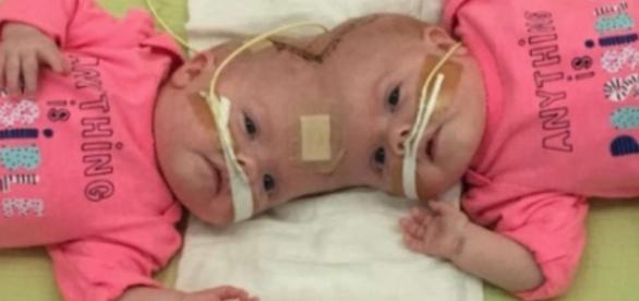 Am Kopf zusammengewachsen: Siamesische Zwillinge erfolgreich ... - hna.de
