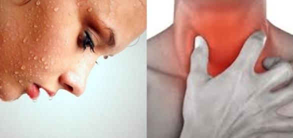 Sintomas e tratamento do vírus da Aids