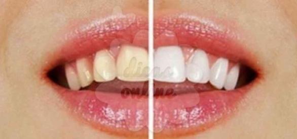 Veja o que deve evitar para escurecer os dentes. (Foto: Reprodução)