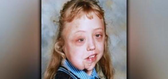 A história da menina que já foi chamada de 'a mais feia do mundo'