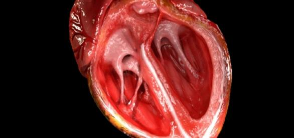 Heart valve - Wikipedia - wikipedia.org creative commons