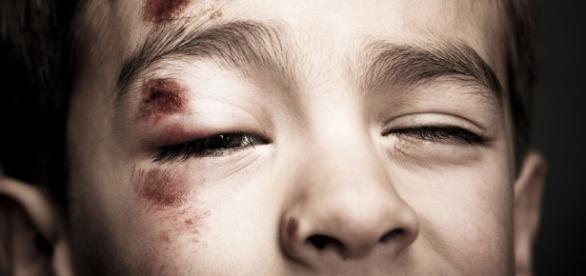 Violenza su bambino disabile di due anni, l'infermiera filmata dai genitori.