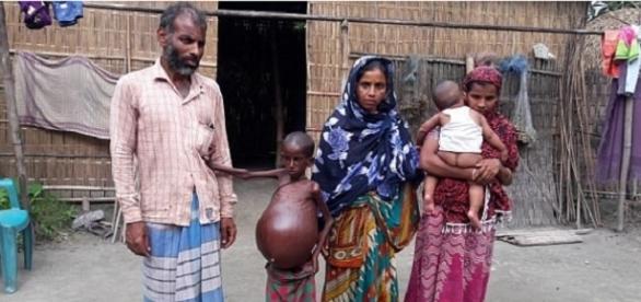 Sem ajuda, garoto indiano pode morrer