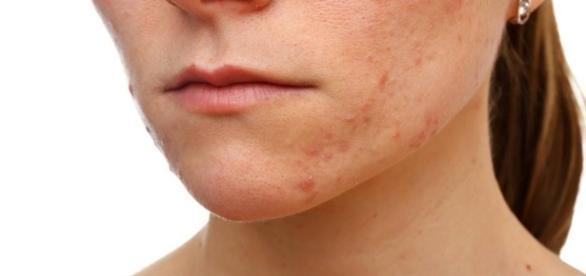 Como retirar manchas do rosto ( FOTO: Reprodução)