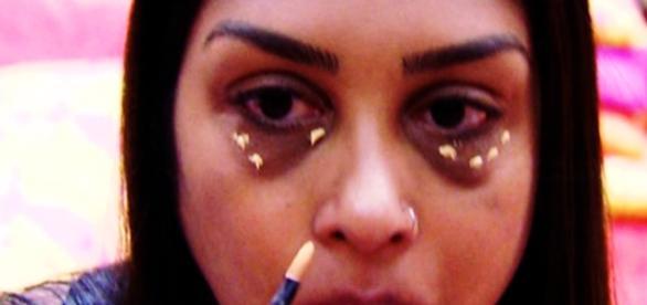 Ex-BBB Amanda faz procedimento para perder olheiras - Google