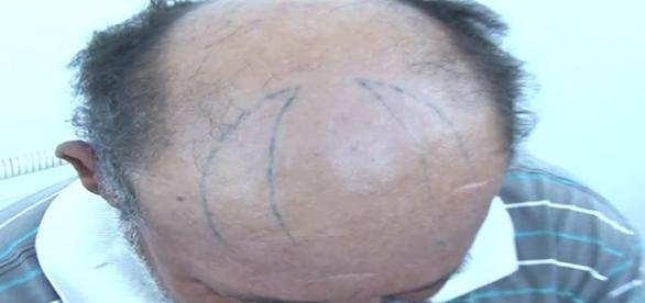 Homem tem chifres tatuado na cabeça
