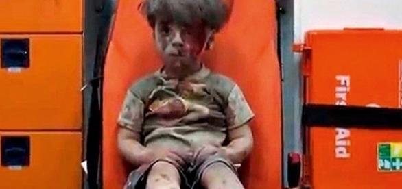 Ele chamou a atenção do mundo após sobreviver a um bombardeio