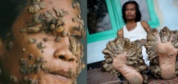Mulher com epidermodisplasia verruciforme
